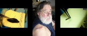 Bob Boyce illegally implanted